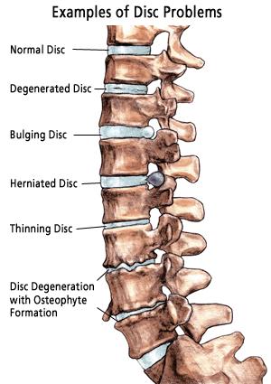 Rib fracture treatment elderly