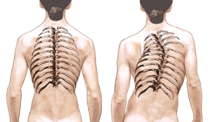 Idiopathic scoliosis - curvature of the spine.